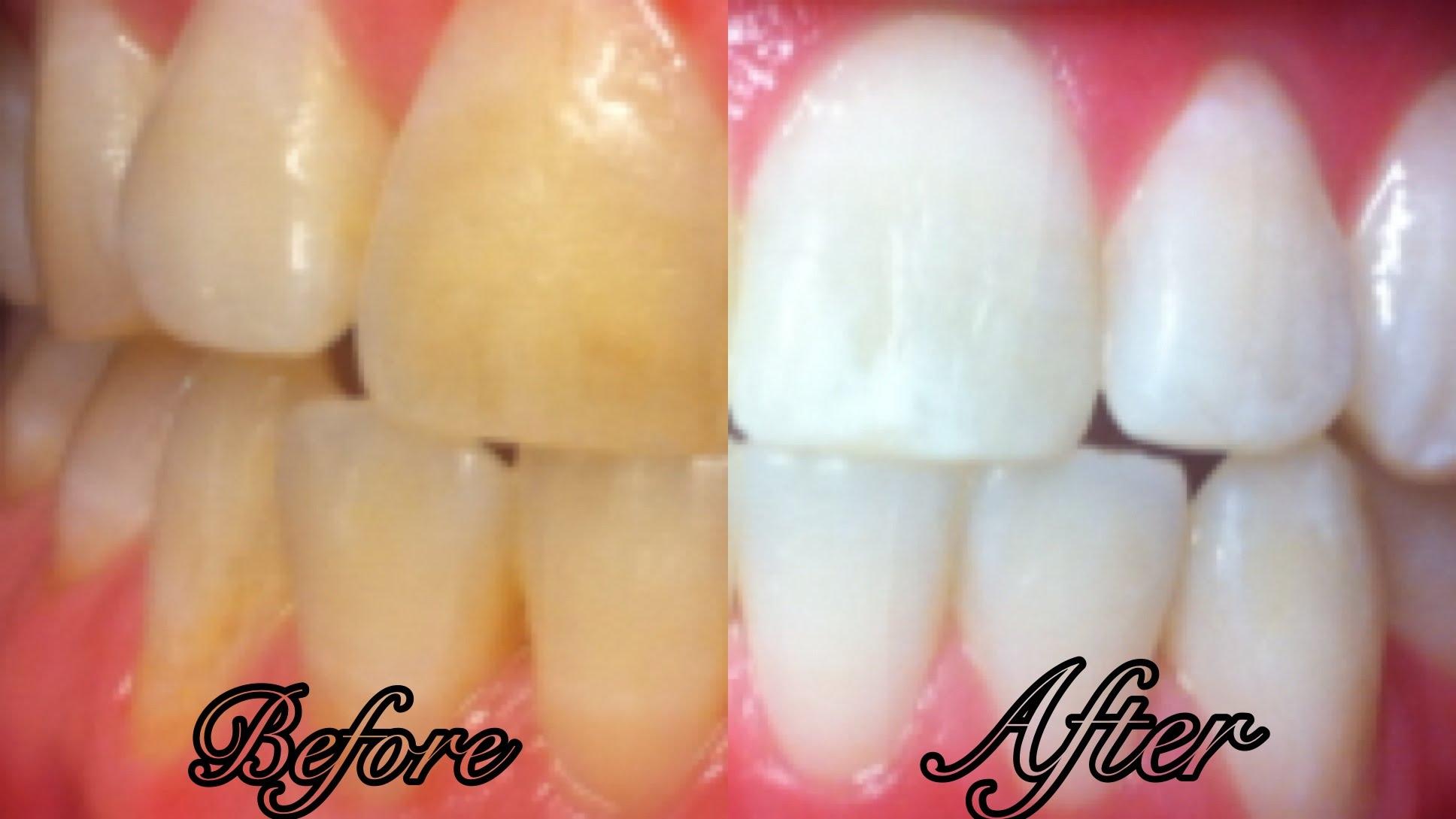 Блестящи зъби за 3 минути