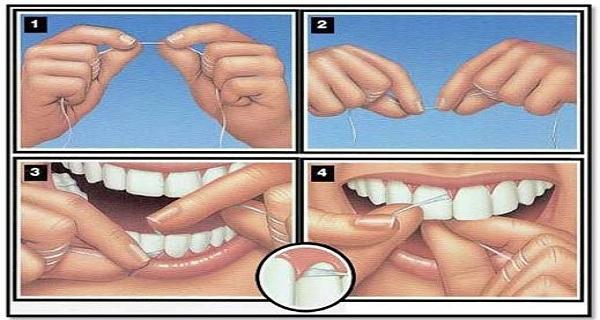 Как да си почистим правилно зъбите с конец?