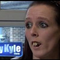 Всички ѝ се присмивали, заради зъбите