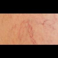 Кестенова тинктура против разширени вени