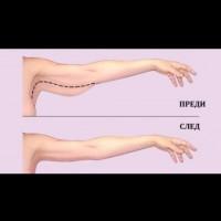 Стягане на горната част на ръцете с упражнения