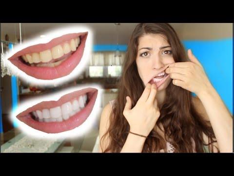 Как да си избелите зъбите вкъщи сами