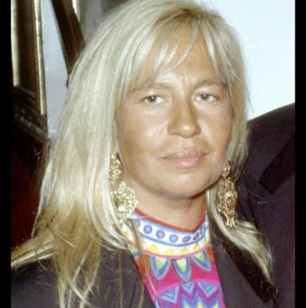 Донатела Версаче преди и след пластичните операции