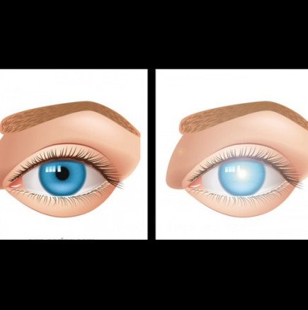 Влиянието на смартфоните върху зрението