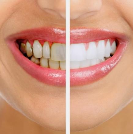 Избелване на зъби с куркума